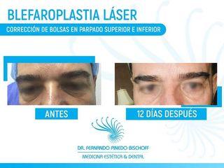 Blefaroplastia Láser Corrección de Bolsas en Parpado Superior e Inferior