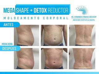 Moldeamiento Corporal Sin Cirugía con MegaShape + Detox Reductor