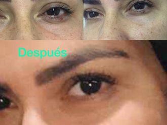 Rejuvenecimiento facial - 646723