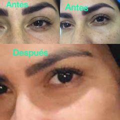 Rejuvenecimiento Facial & Vaporización de Verruga Párpado Inferior