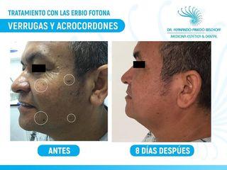 Tratamiento con Laser de Erbio Fotona para Elminar Verrugas y Acrocordones