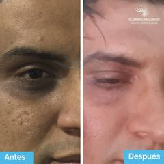 Tratamiento para Eliminar Ojeras Sin Ácido Hialuronico