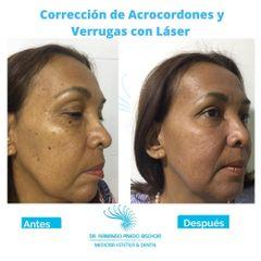 Corrección de Acrocordones y Verrugas con Láser