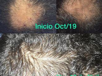 Alopecia-662066