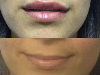 Aumento de labios-662273
