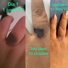 Vaporización y Cauterización de Verruga - Dr. Fernando Pinedo Bischoff