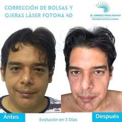 Corrección de Bolsas y Ojeras con Láser Fotona 4D - Dr. Fernando Pinedo Bischoff