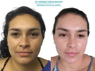 Rejuvenecimiento facial - 663176