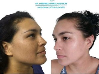 Rejuvenecimiento facial - 663177