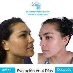 Rejuvenecimiento Facial con Láser de Erbio Fotona - Dr. Fernando Pinedo Bischoff