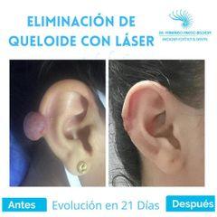 Eliminación de Cicatriz Queloide con Láser - Dr. Fernando Pinedo Bischoff
