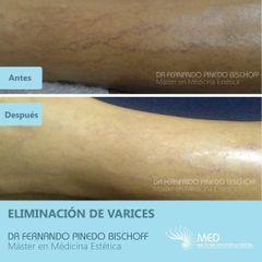 Eliminación de Varices - Dr. Fernando Pinedo Bischoff