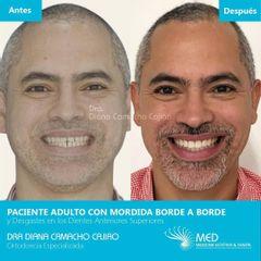 Tratamiento de Ortodoncia - Dr. Fernando Pinedo Bischoff