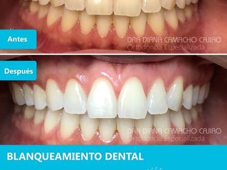 Blanqueamiento dental-701330