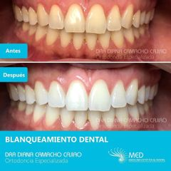 Blanqueamiento Dental - Dr. Fernando Pinedo Bischoff