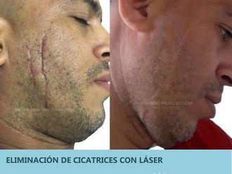 Cicatrices-701331