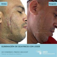 Corrección de Cicatriz con Laser de Erbio y Neodimio - Dr. Fernando Pinedo Bischoff