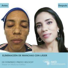 Eliminación de Manchas con Laser de Erbio - Dr. Fernando Pinedo Bischoff
