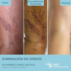 Eliminación de Várices - Dr. Fernando Pinedo Bischoff