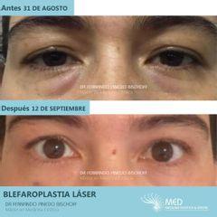 Blefaroplastia Laser (Sin Cirugia) - Dr. Fernando Pinedo Bischoff