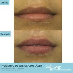 Aumento de Labios con Laser - Dr. Fernando Pinedo Bischoff