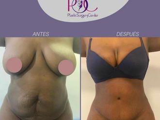 Abdominoplastia-792683