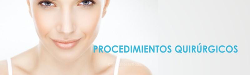 Procedimientos quirúrgicos