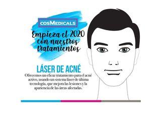 Láser de acné