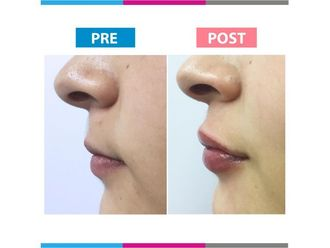 Aumento de labios-663640