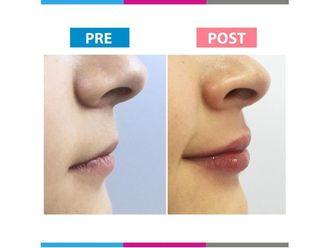 Aumento de labios-663642
