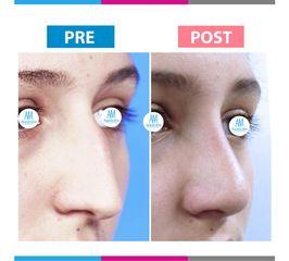 Rinoplastia - antes y después