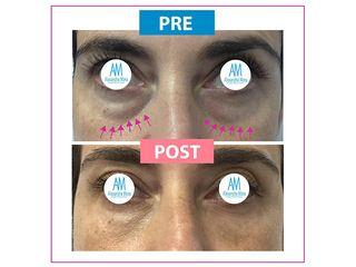 Eliminación de ojeras - Doctora Alexandra Mora