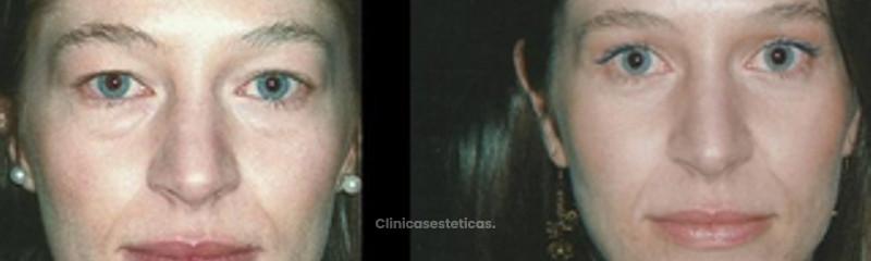 Antes y despues de rinoplastia