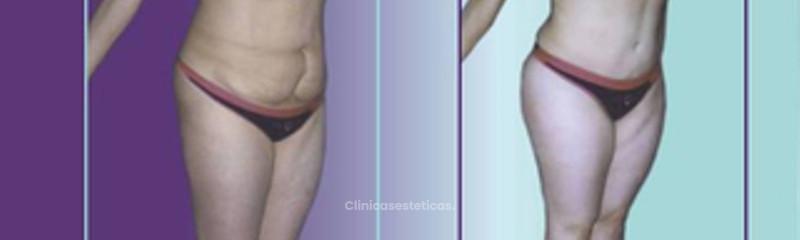 Antes y despues de abdominoplastia (1)