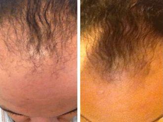 Alopecia-512534