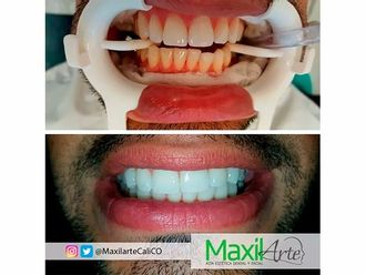 Blanqueamiento dental-603366