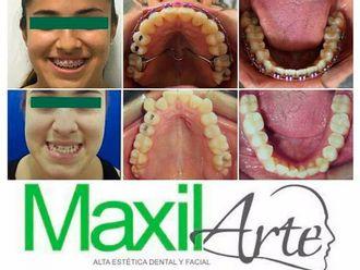 Ortodoncia - 603367