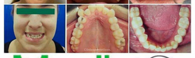Caso Ortodoncia no quirúrgico.