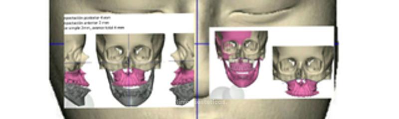 Planeación quirúrgica en 3D.