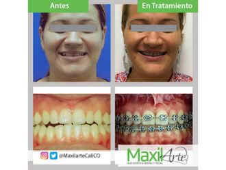 Ortodoncia-611578