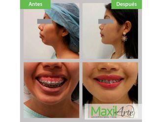 Cirugía maxilofacial - 611586