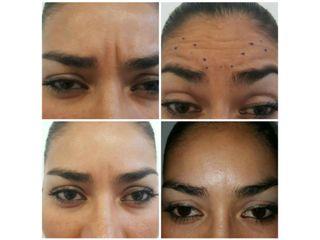 Botox (Toxina Botulínica)