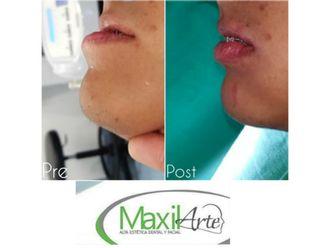 Cirugía maxilofacial - 616209