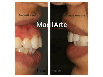 Ortodoncia - 616212