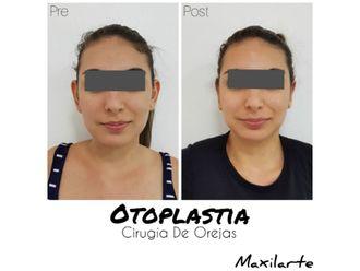 Otoplastia-618385