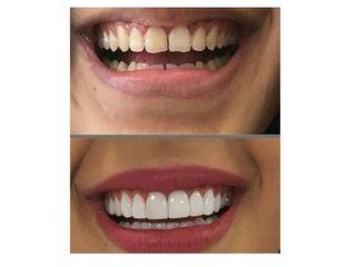 Diseño de sonrisa