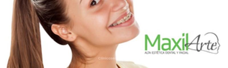Ortodoncia en Cali