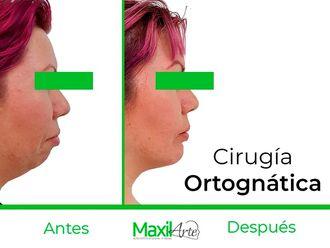 Cirugía maxilofacial - 630511