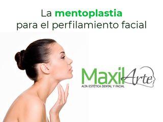 mentoplastia para el perfilamiento facial