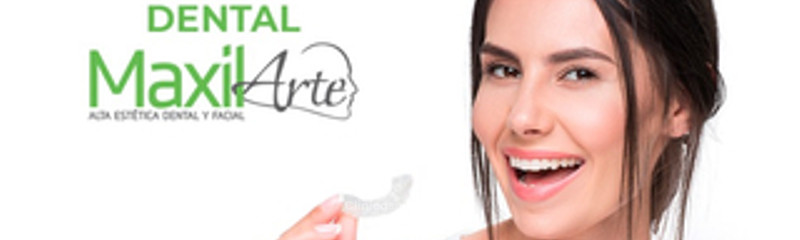 Blanqueamiento o aclaramiento dental profesional.